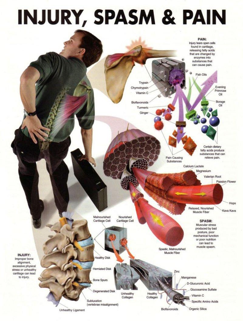 Injury, Spasm, and Pain
